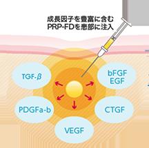 イメージ:PRP-FD(血小板血漿フリーズドライ)注射